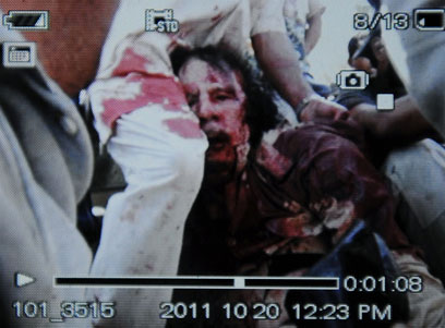 Unconfirmed photo of wounded Gaddafi (AFP)