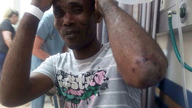 Bayach shows cuts and bruises caused by inspectors' assault