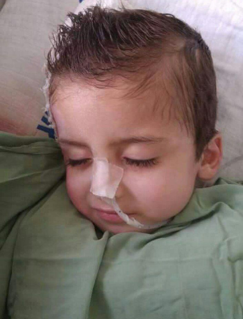 Ahmad Dawabsheh after his bandages were removed two months after the attack.
