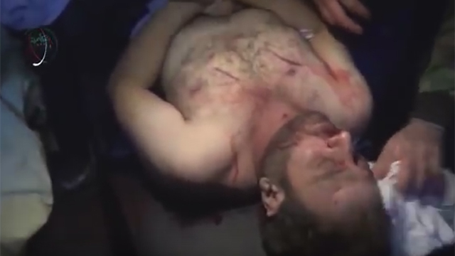 An alleged victim of Sarin gas exposure in Syria