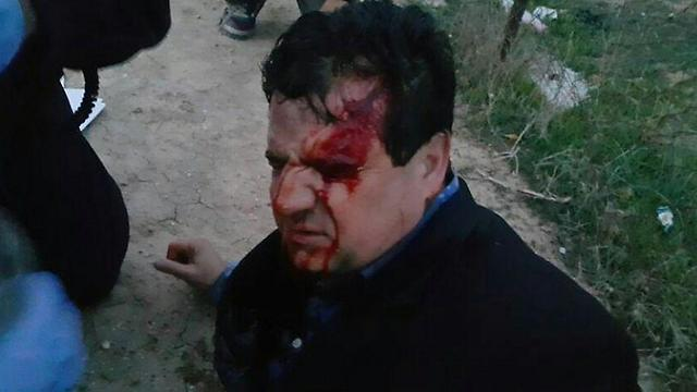 MK Ayman Odeh after he was injured in the clashes
