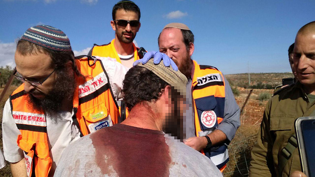 Israeli lightly wounded in the clashes