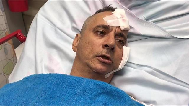 Aharon Buchris who was wounded in rocket hit on his home in Sderot (Photo: Barzilai Medical Center)