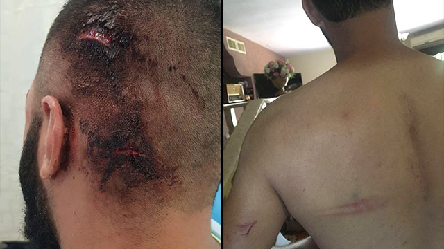 Injuries the three Arabs sustained in the attack