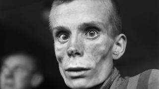 This file photo taken on May 1, 1945 shows an unidentified 18-year-old Russian Jew, a camp prisoner, suffering from dysentery
