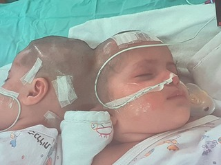 The twin sisters were born conjoined at the head at Soroka Medical Center last August
